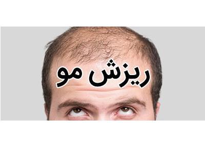 ریزش مو | علائم، علت و درمان