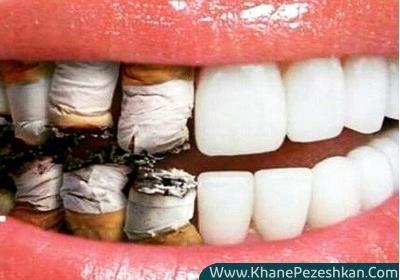 تاثیرات سیگار کشیدن بر سلامت دهان و دندان