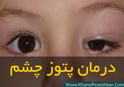 عوامل بروز افتادگی چشم و 8 درمان طبیعی برای پلکهای افتاده