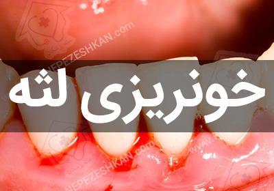 درمان خونریزی لثه