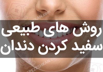هفت راه برای سفید کردن دندان ها به روش طبیعی