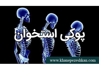 پوکی استخوان چیست؟ علائم پوکی استخوان و پیشگیری از پوکی استخوان
