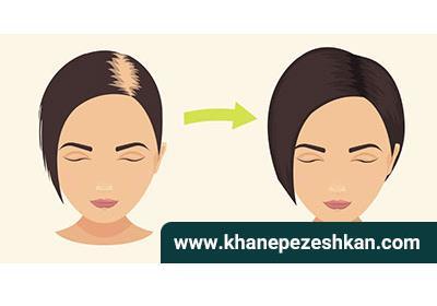 هفت راه طبیعی برای رشد سریع تر موها
