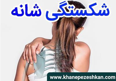 شکستگی استخوان شانه