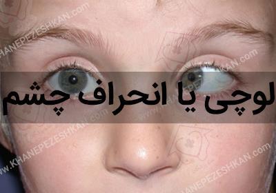 انحراف چشم ،علائم و درمان