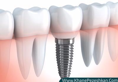 ایمپلنت تک دندان چیست و نحوه قرارگیری ایمپلنت