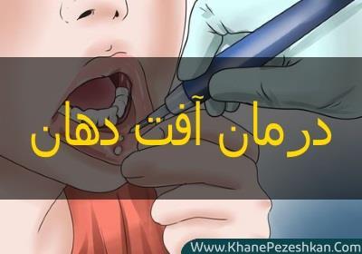 آفت دهان چیست و چگونه می شود آن را درمان کرد؟