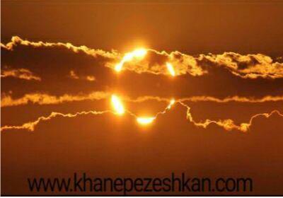 محافظت از چشم در مقابل خورشید