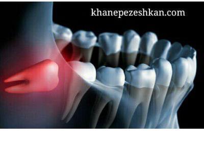 مراقبت های بعد از جراحی دندان عقل