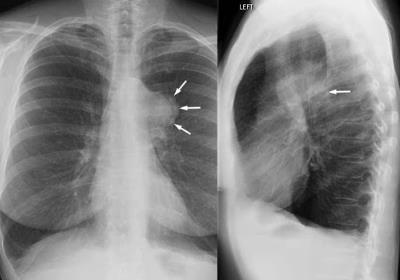 علائم و نشانه های سرطان ریه