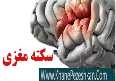 هر آنچه باید درباره سکته مغزی بدانید
