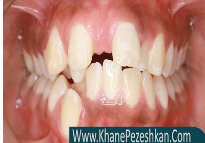 بهداشت دندان های کج و دارای اختلالات بایت