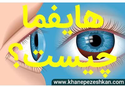 هایفما چیست ؟ مقاله توسط دکتر مهرداد محمدپور