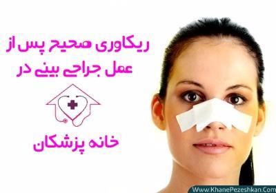 ریکاوری بعد از عمل بینی ؛ بررسی نکات، زمان و نتائج آن