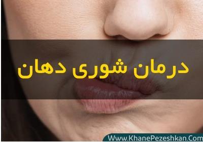 10 روش درمان شوری دهان در خانه