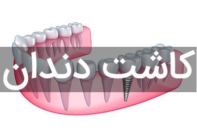 کاشت دندان و فواید آن