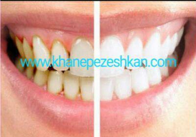 جرم گیری دندان با دانه های کنجد
