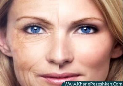 مبارزه با پیری با افزایش تولید کلاژن پوست
