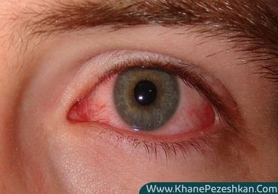 سندرم خشکی چشم | علائم، تشخیص و درمان