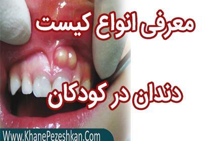 معرفی انواع کیست دندان در کودکان