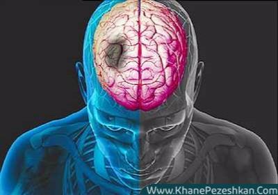 9 اصل ساده پیشگیری از سکته مغزی با تغییر سبک زندگی
