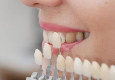 دندانپزشک زیبایی و ترمیمی