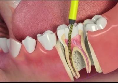 متخصص جراحی و درمان ریشه دندان