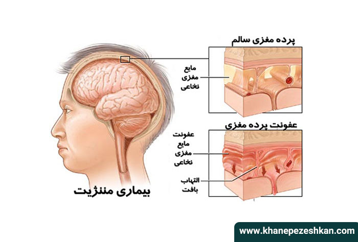 مننژیت مغزی چیست؟
