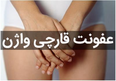 عفونت قارچی واژن، علائم، علت و پیشگیری