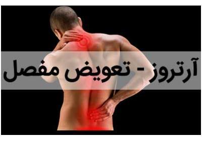 آرتروز | تعویض مفصل