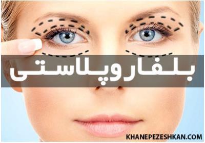 جراحی پلاستیک پلک چشم - بلفاروپلاستی