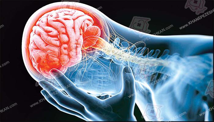 علائم سکته مغزی در زنان
