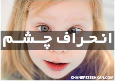 در مورد بیماری انحراف چشم (استرابیسم) بیشتر بدانید