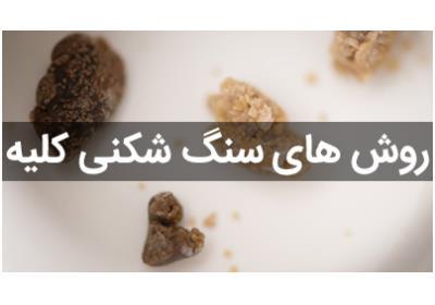 انواع روش های سنگ شکنی کلیه توسط دکتر آقامحمدپور