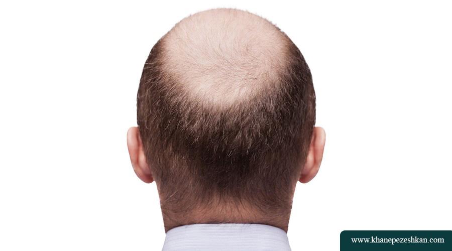 بهترین شیوه برای درمان ریزش مو