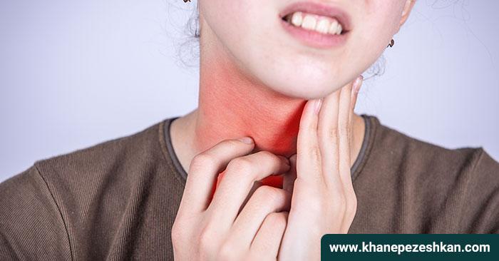 تونسیلیت یا عفونت لوزه : علائم ، علت و درمان آن