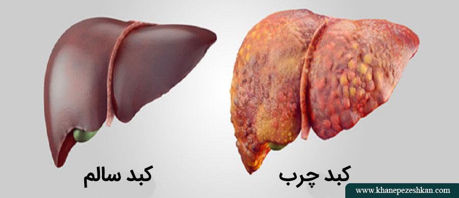 غذاهایی که بیمار مبتلا به کبد چرب آن را بایستی بخورد