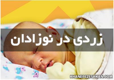 زردی در نوزادان و درمان آن
