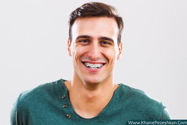 زمان و سن مناسب برای انجام ارتودنسی و سیم کشی دندان
