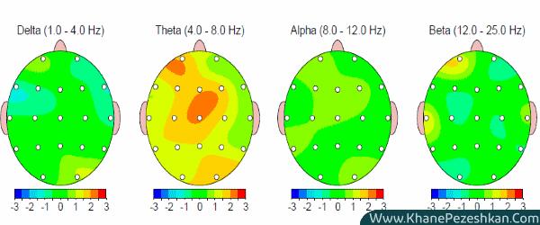 نحوه استفاده از نقشه ی مغزی الکتروانسفالوگرافی کمی برای تقویت ذهن