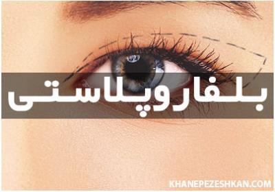 جراحی پلاستیک پلک چشم (بلفاروپلاستی)
