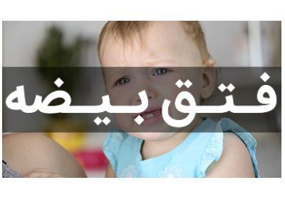 عدم نزول بیضه ها | توسط دکتر علیرضا سینا