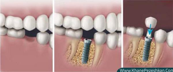 ایمپلنت تک دندان چیست و مزایای آن