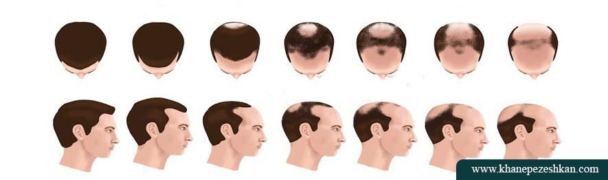حمایت از رشد موی طبیعی