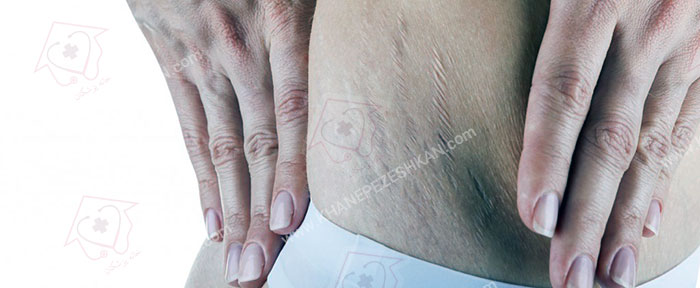 کربوکسی تراپی برای درمان چین و چروک