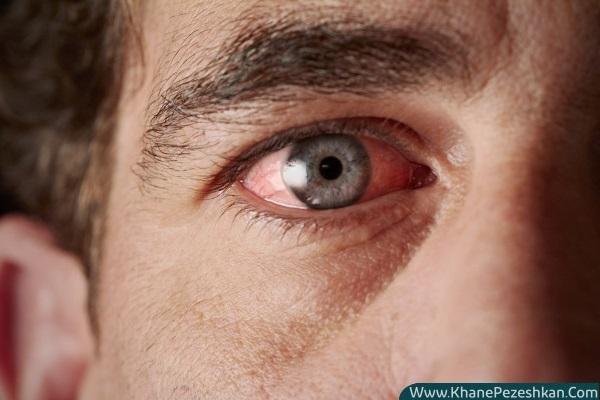 نحوه درمان خشکی و خارش چشم در زمستان