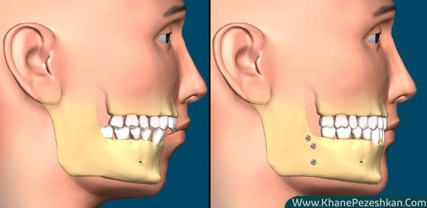 انواع و عوارض جراحی فک بالا و پایین و زمان قطعی شدن انجام آن