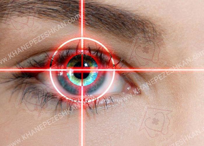 انکسار و جراحی چشم از طریق لیزر