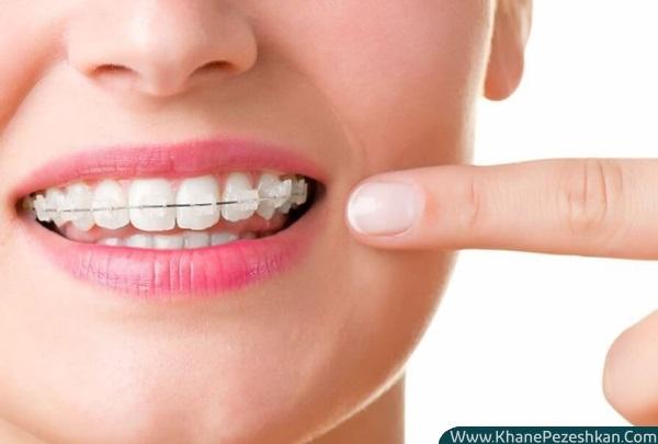 انواع سیمکشی (بریس) ارتودنسی دندان و کاربرد هر کدام از آنها