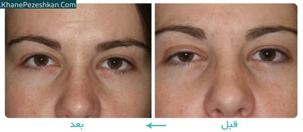 عوامل بروز پتوز چشم و 8 درمان طبیعی برای پلکهای افتاده